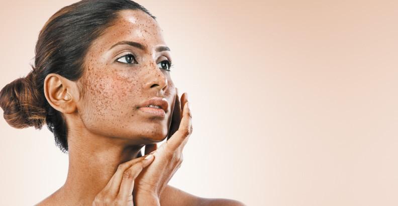best skin lightening creams for hyperpigmentation