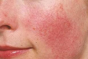 Showing Sensitive Skin