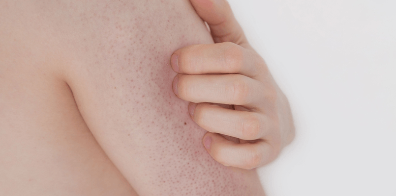 best body wash for keratosis pilaris